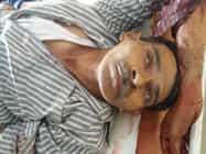 कोडरमा में हुई सड़क दुर्घटना में सीआरपीएफ जवान गंभीर,  रिम्स रेफर