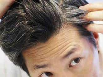शोध में खुलासा : असमय बालों का सफेद होना दिल की कमजोरी का संकेत