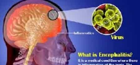 इंसेफेलाइटिस की जागरूकता को निकाला कैंडिल मार्च